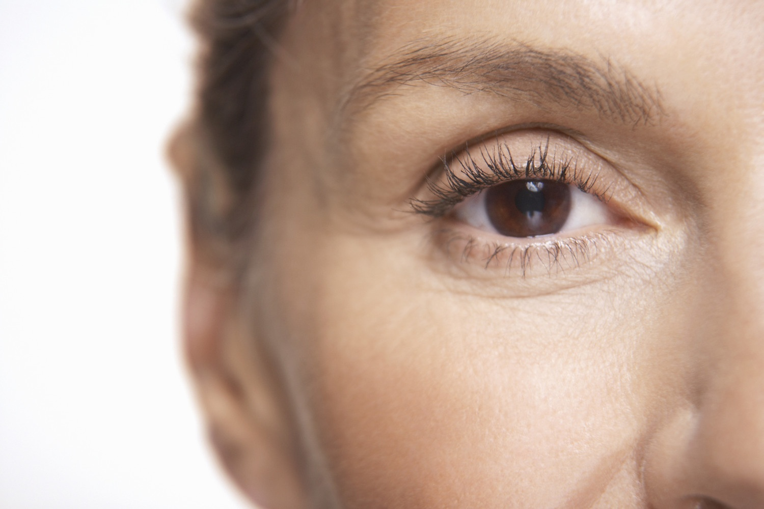 Is there an age limit to laser eye surgery resize